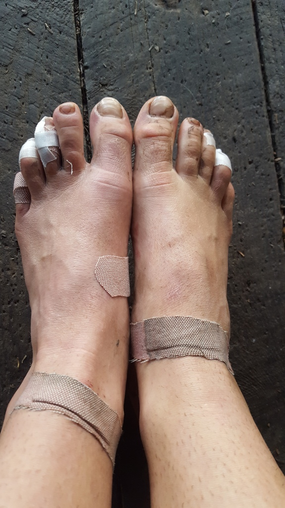 Photo of hiker feet bandaged up for the day of hiking the Vermont Long Trail.